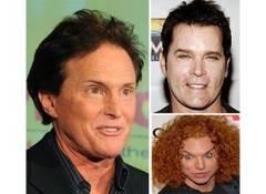 Barbati celebri uratiti de operatiile estetice