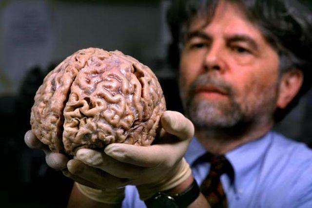Zece lucruri interesante despre creierul tau