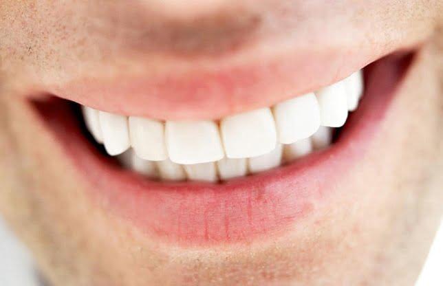 Ce sa faci pentru a avea dintii de un alb stralucitor?! VIDEO