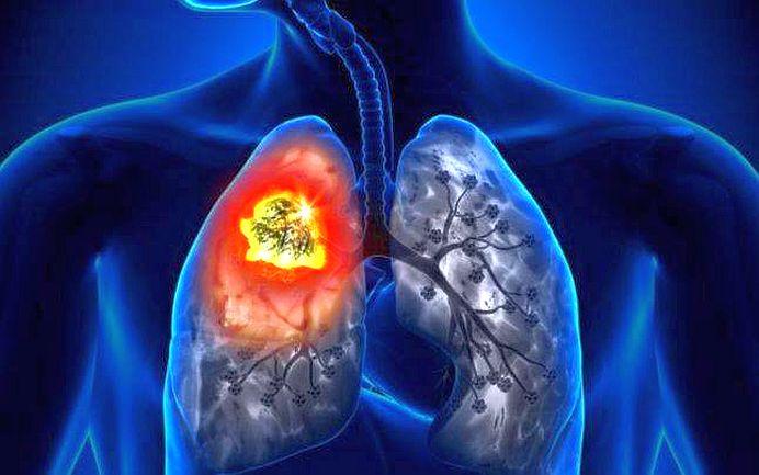S-a descoperit TRATAMENTUL impotriva CANCERULUI PULMONAR!