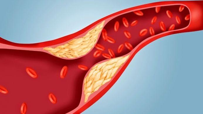 Cea mai eficienta metoda pentru a reduce colesterolul si grasimile rele din sange!