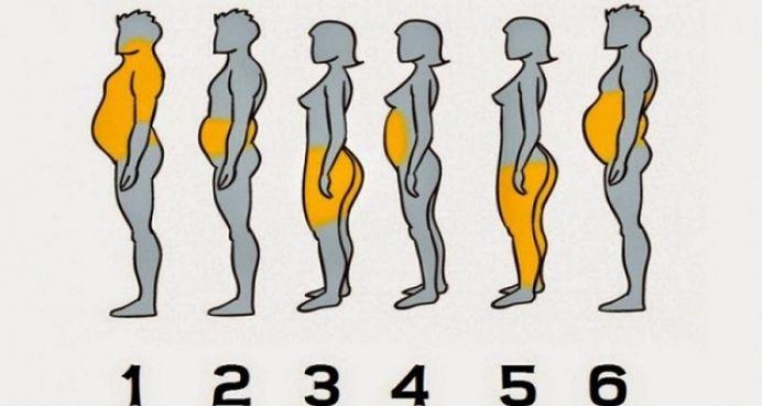 Degeaba faci flotari daca ai fundul mare! Slabeste INTELIGENT, in functie de zona corpului unde se acumuleaza grasime!
