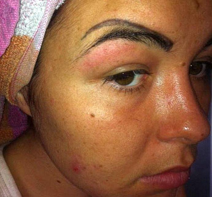 O tanara s-a dus sa-si tatueze sparncenele intr-un salon de cosmetica. Rezultatul este INGROZITOR!