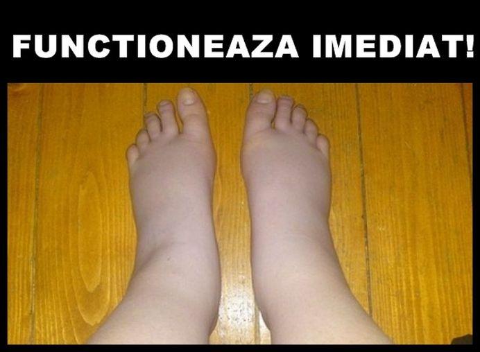 Ai picioarele umflate de la CANICULA? Scapa de problema in doua minute!