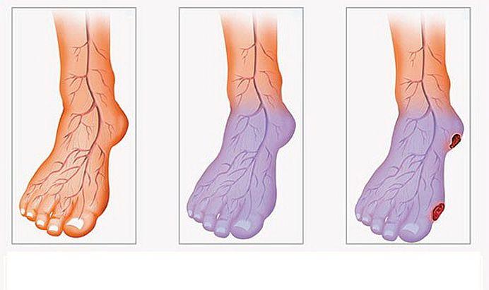 Ai picioarele reci? Scapa de problemele de circulatie cu cateva exercitii simple!