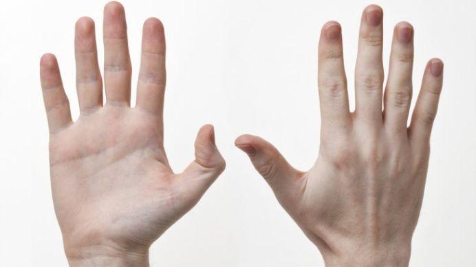 Primele simptome ale CANCERULUI se vad pe maini! Uite care sunt acestea!