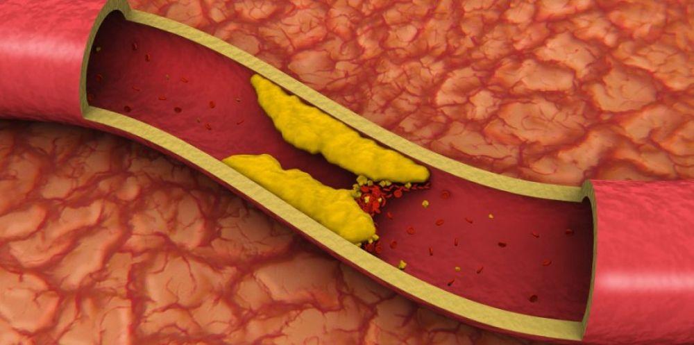 Cinci simptome clare care iti arata ca ai COLESTEROLUL crescut!