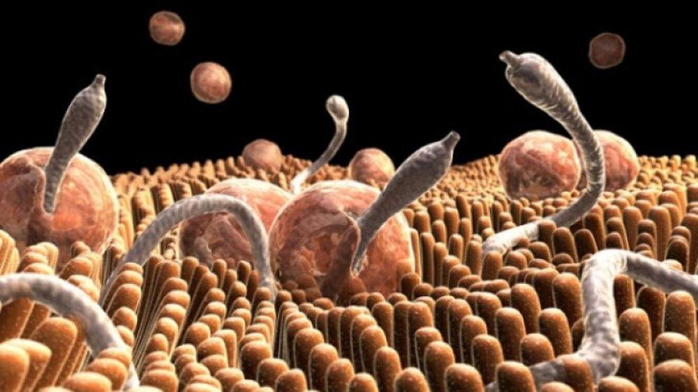 Unul din trei oameni sufera de paraziti fara sa stie! Acestea sunt cele mai des intalnite simptome!